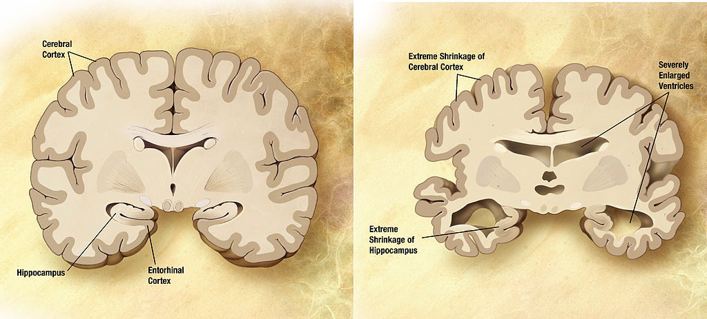 Alzheimer's_disease_brain_comparison