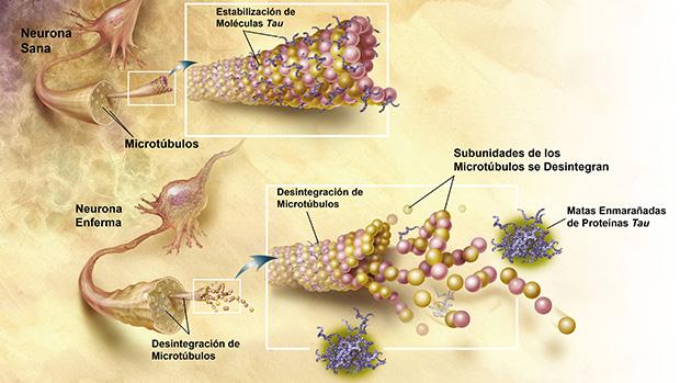 Formacion de ovillos neurofibrilares en paciendo de Alzheimer. imagen de wikipedia.org