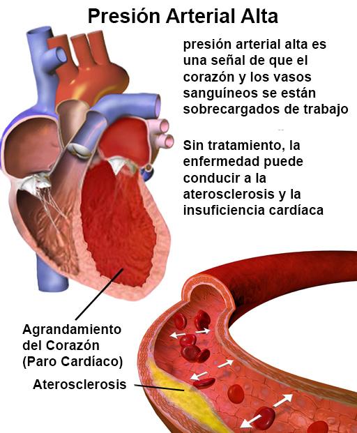 Presion Arterial Alta.  Imagen de en.wikipedia.org