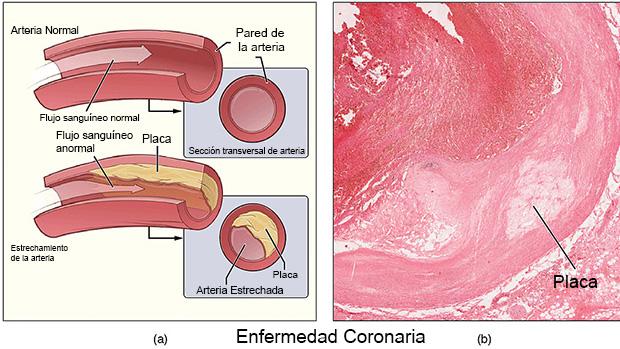 Enfermedad Coronaria. Imagen en en.wikipedia.org