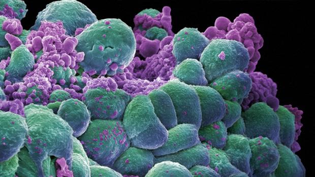 Células de cáncer de mama.  Imagen de  crafty_dame