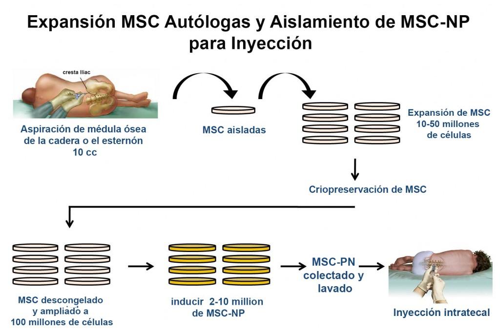 Procedimiento de MSC-NPs