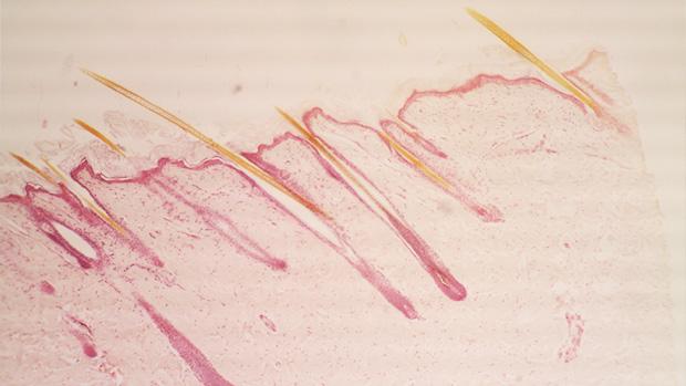 imagen de folículos del cabello de  jessy731